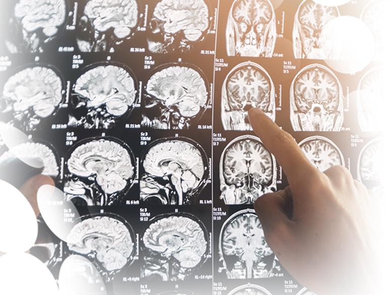 Psicología General Sanitaria + Neuropsicología